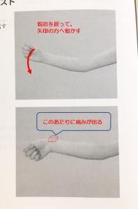 腱鞘炎検査方法(アイヒホッフテスト)
