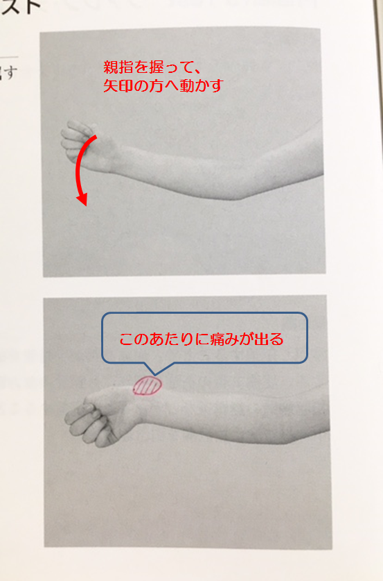 腱鞘炎検査方法 アイヒホッフテスト
