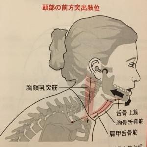 頭部前突位と顎関節の関係