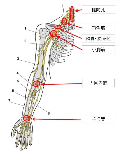 正中神経絞扼部位