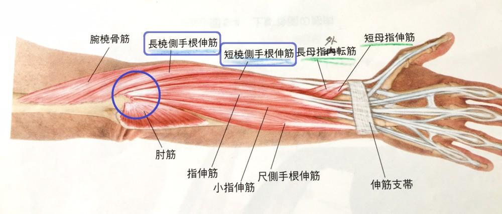 テニス肘 長短橈側手根伸筋