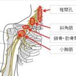 胸郭出口症候群 絞扼部