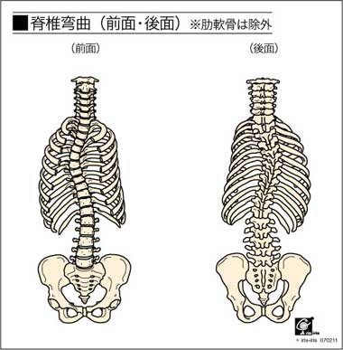 脊柱側弯症scoliosisによる腰痛、背中の痛み