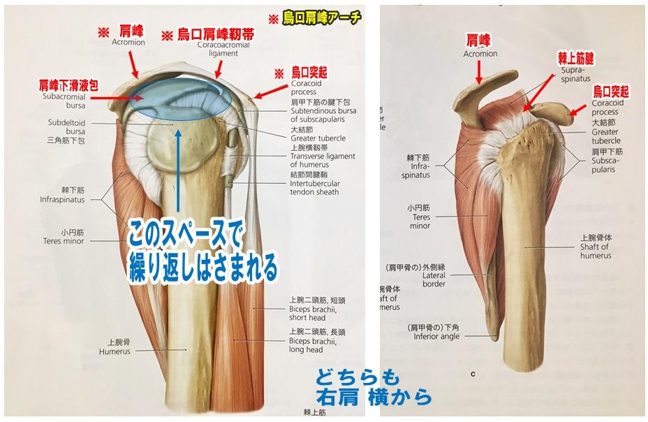 肩関節肩峰下インピンジメント症候群