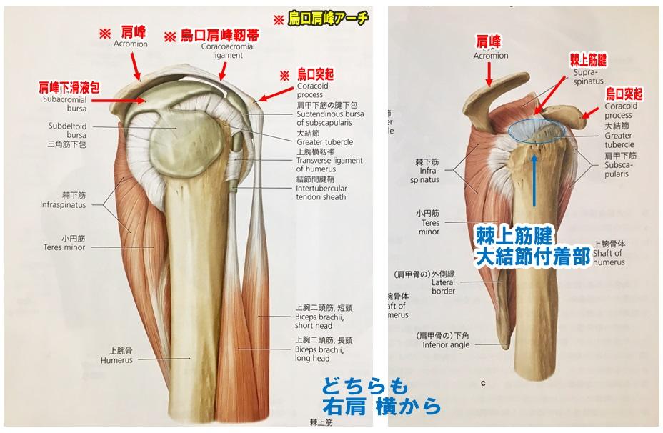 肩棘上筋腱腱板断裂2