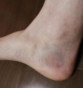 サッカーフットサルで外反捻挫、内くるぶし下の内出血
