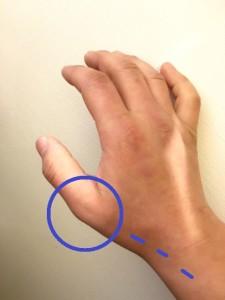 親指の付け根、突き指の痛み